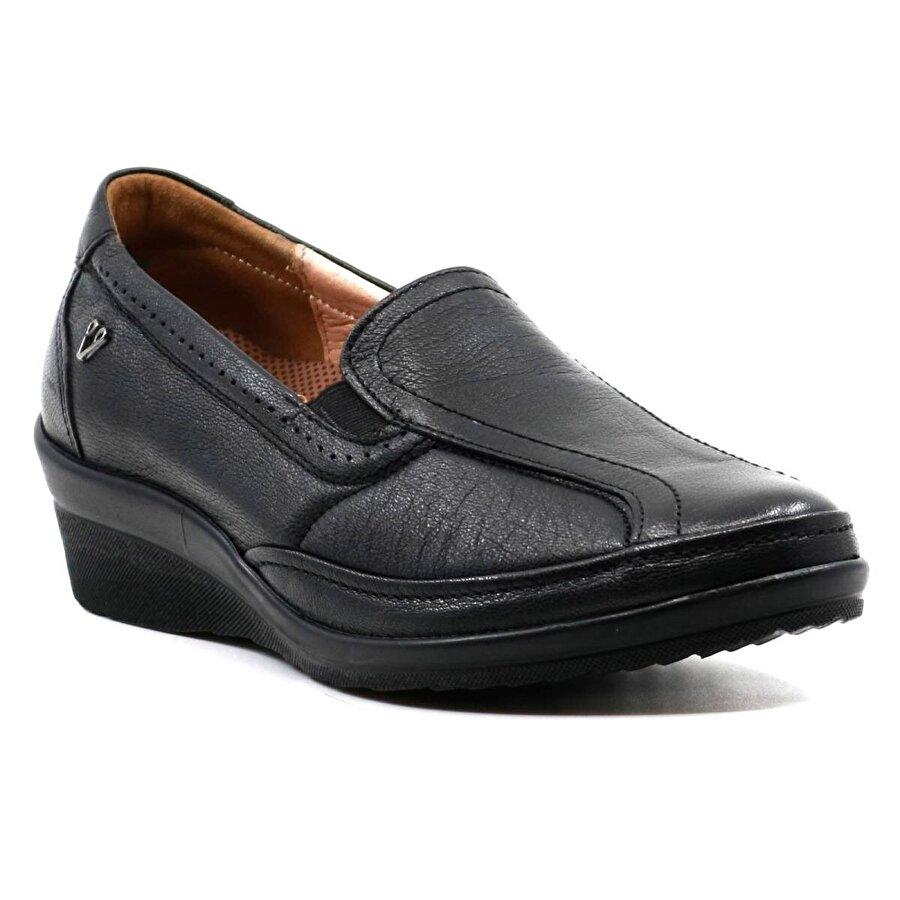 FORELLI Ortopedi 26205 Hakiki Deri Kadın Ayakkabı Siyah